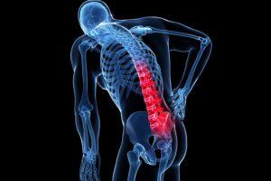 Dieta na osteoporozę. Czym wzmacniać kości?