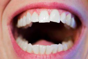 Korony zębowe – co to właściwie jest