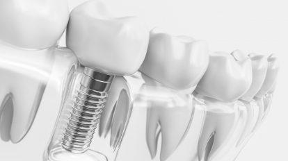 Białe plamy na zębach - jak sobie poradzić?