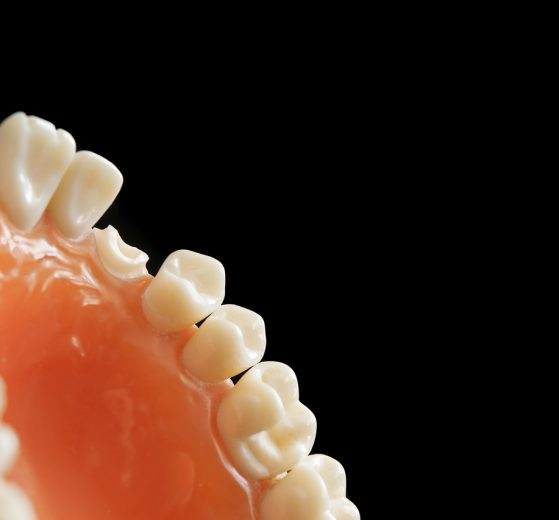 Jakie implanty stomatologiczne wybrać