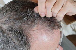 Objawy i leczenie łysienia androgenowego